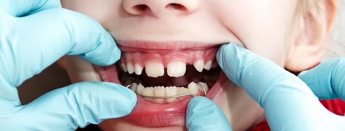 Çocuklarda Ortodontik Tedavi
