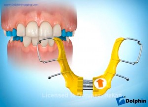 Hareketli Ortodontik Genişletme Aygıtları Alt Çene