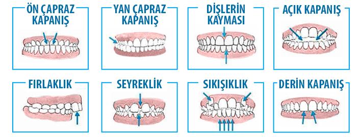 Ne Zaman Bir Ortodonti Uzmanına Görünmelisiniz?