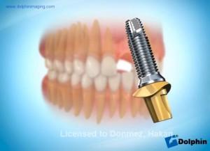 Ön Diş İmplantı