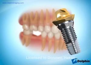 Arka Diş İmplantı