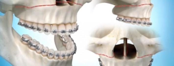 Üst Çene Ameliyatı