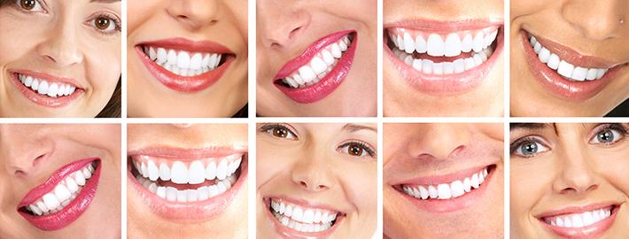 diş tedavisi ile ilgili görsel sonucu