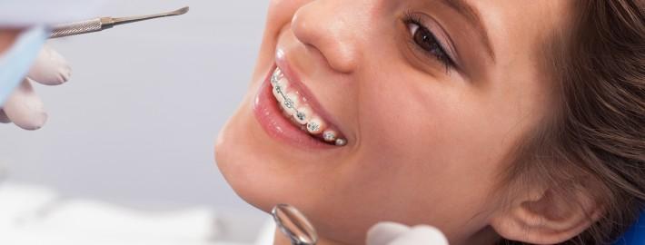Ortodonti Tedavisi Fiyatları
