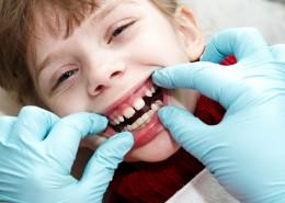 Çocuklarda Ortodonti