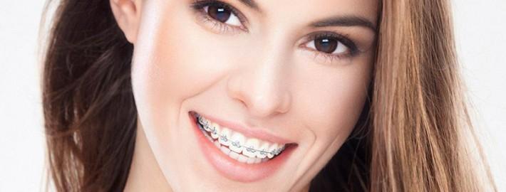Diş Teli Takmadan Dişler Kendiliğinden Düzelir Mi?