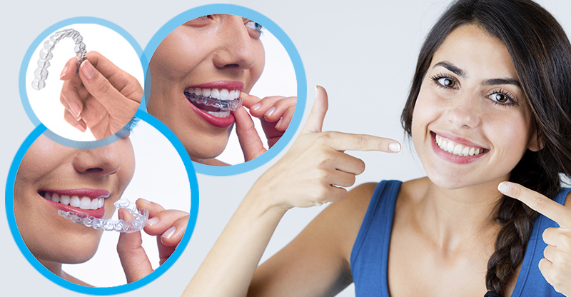 -Invisalign (telsiz ortodonti) ile ilgili görsel sonucu