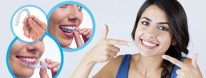 ortodontik-seffaf-plak-tedavisi-telsiz-tedavi