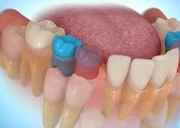 Ortodontik Tedavi için Diş Çekimi