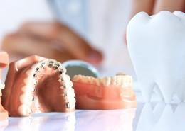 Çarpık, yamuk diş tedavisi ile dişler nasıl düzeltilir?