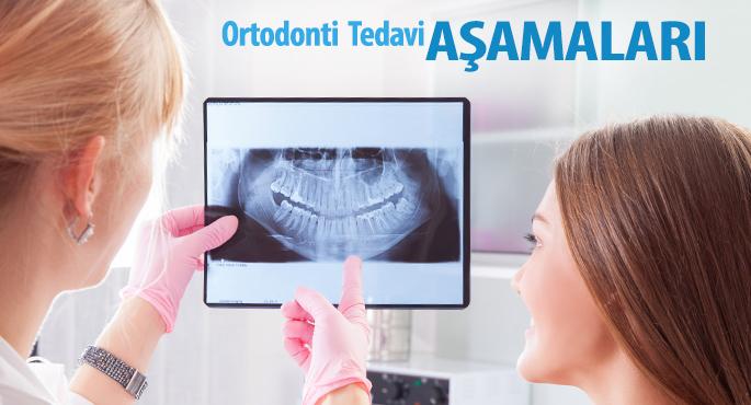 Ortodonti Tedavi Aşamaları